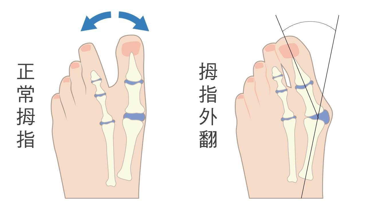 骨 骨折 位 頸 禁忌 部 大腿 肢